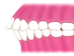 矯正の時に歯を抜くのはなぜ?