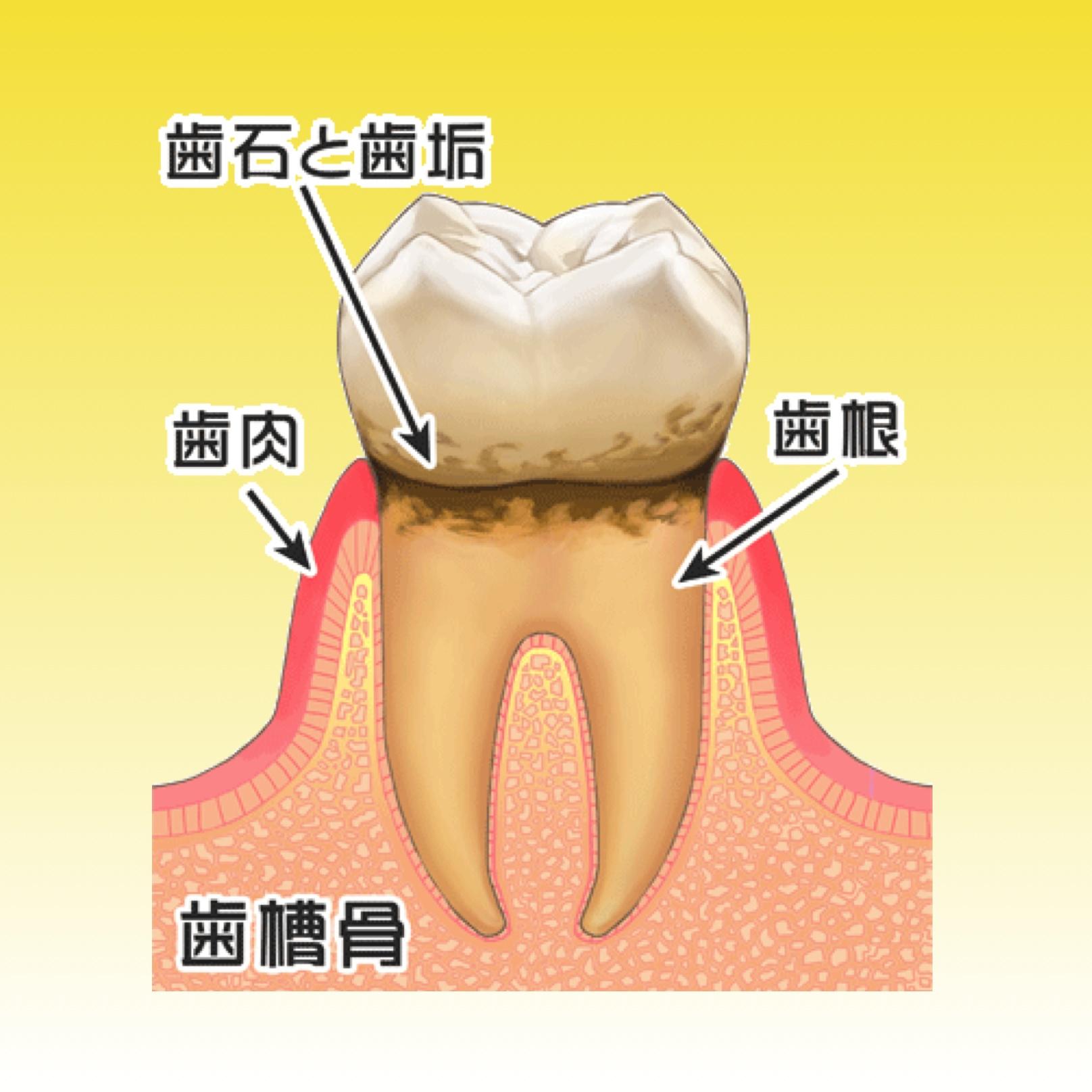 歯肉炎の治療について