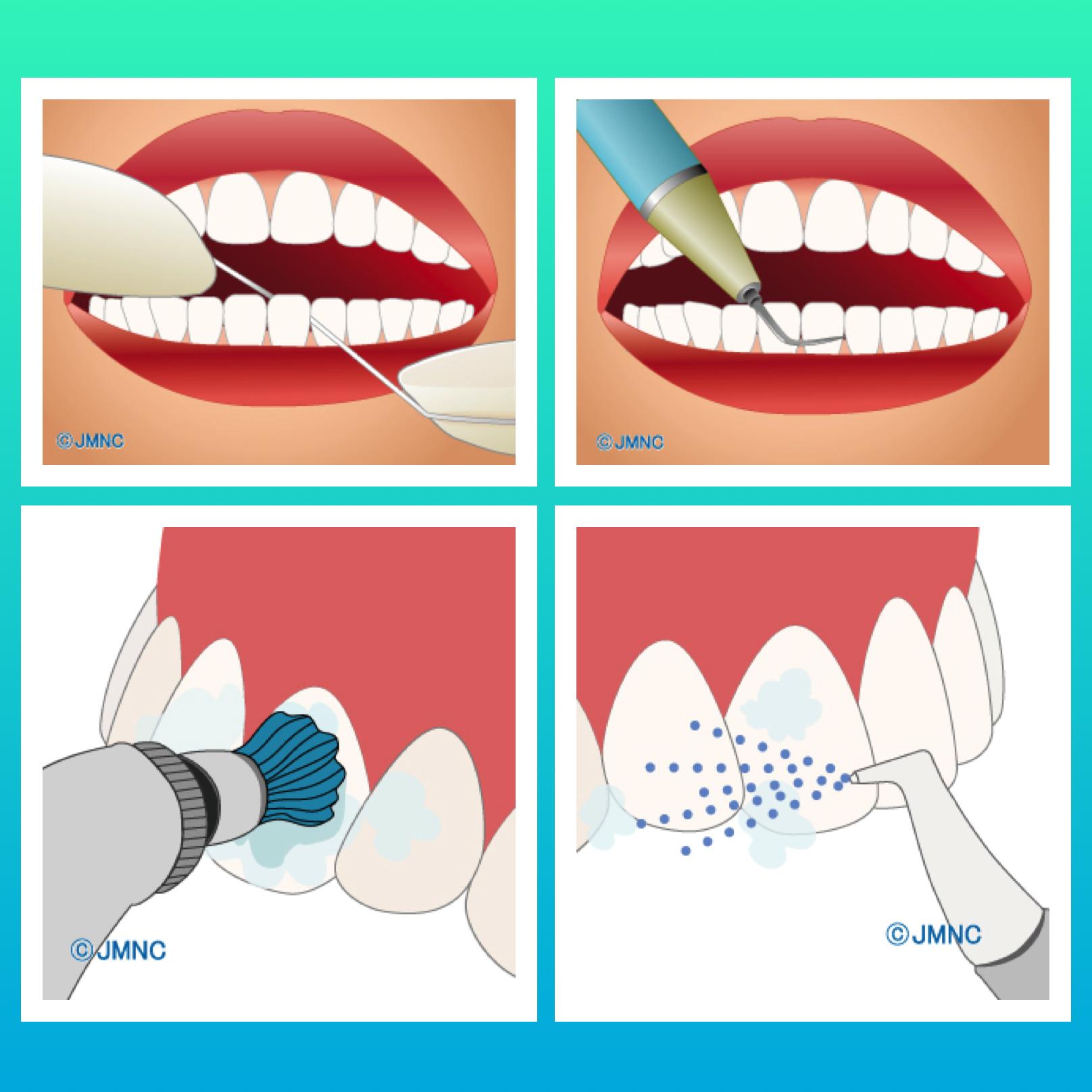 歯の表面のステインを取りたい方にPMTCのオススメ