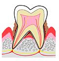 歯周病と糖尿病との関わりについて