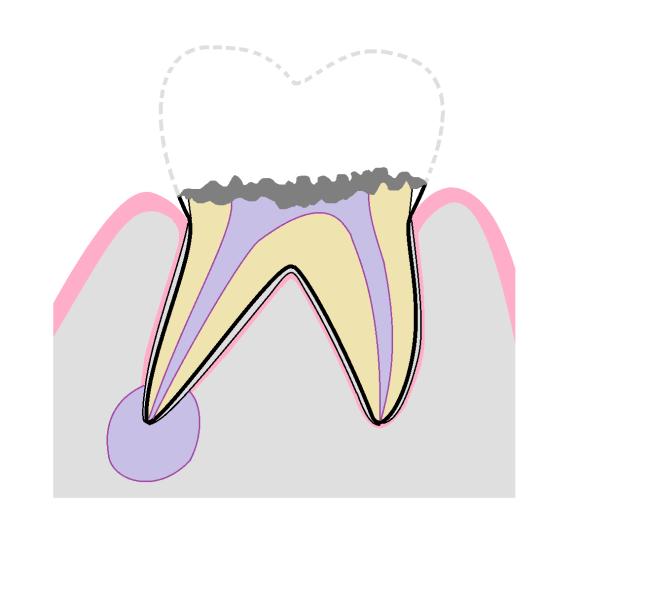 虫歯 C4