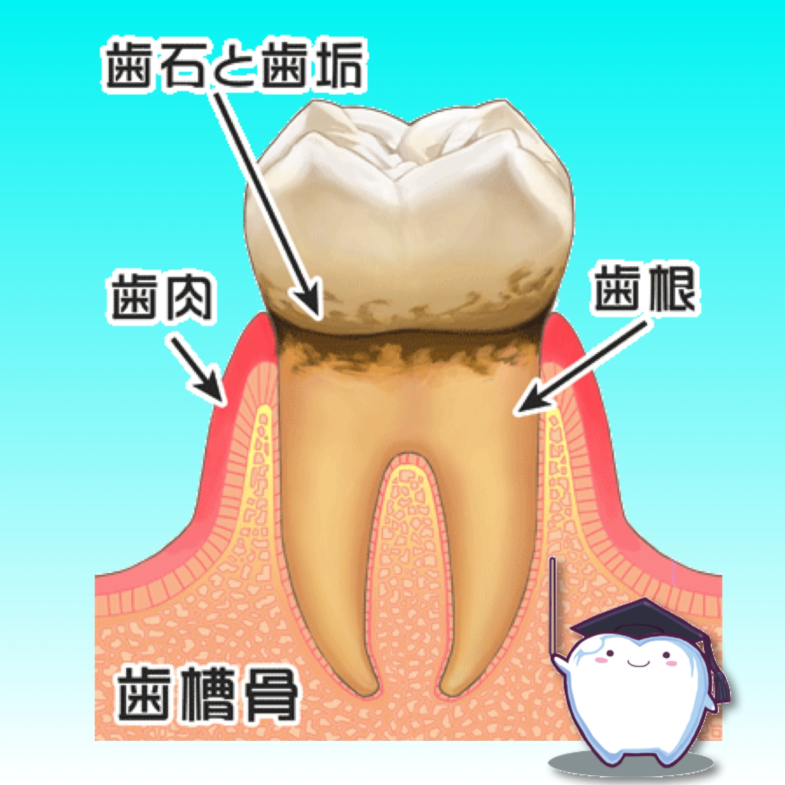歯肉炎のうちに治療しましょう!
