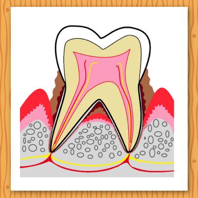 軽い段階の『歯肉炎』であれば治ります。