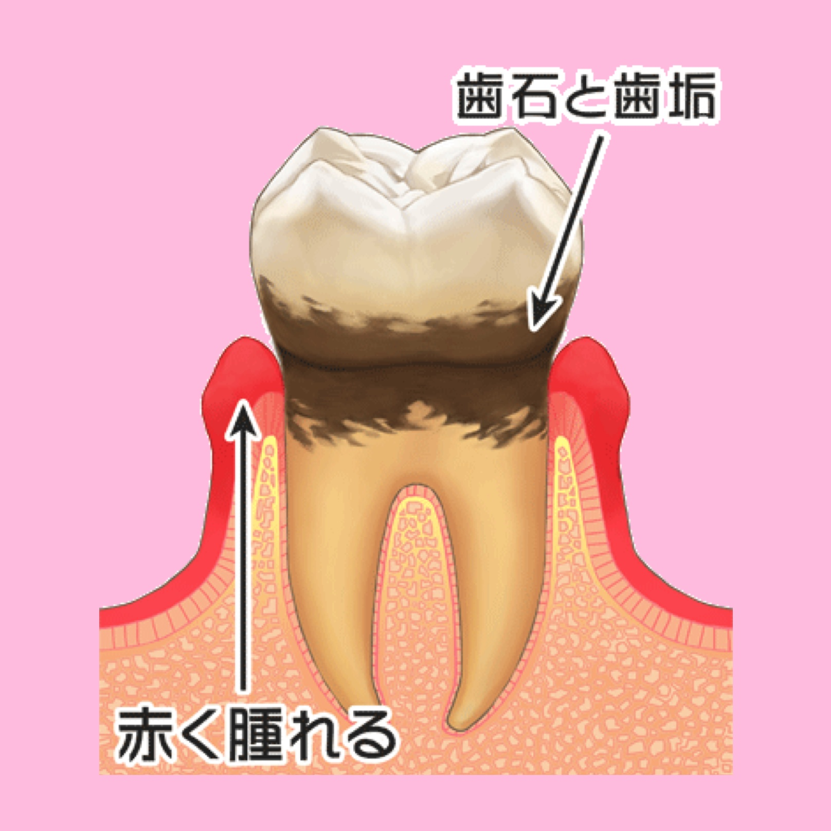 歯周病の進み方と治療について 〜軽度歯周炎〜