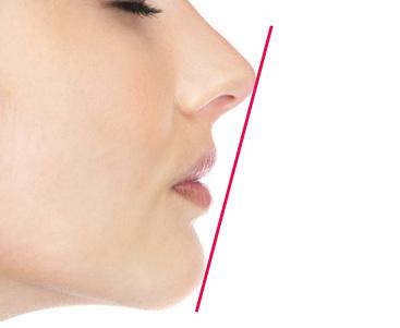 矯正歯科と美しさの定義 Eライン(イーライン、エステティックライン)とは?
