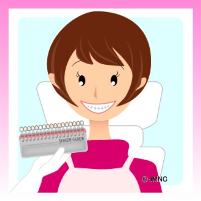 ホワイトニング白い歯を維持