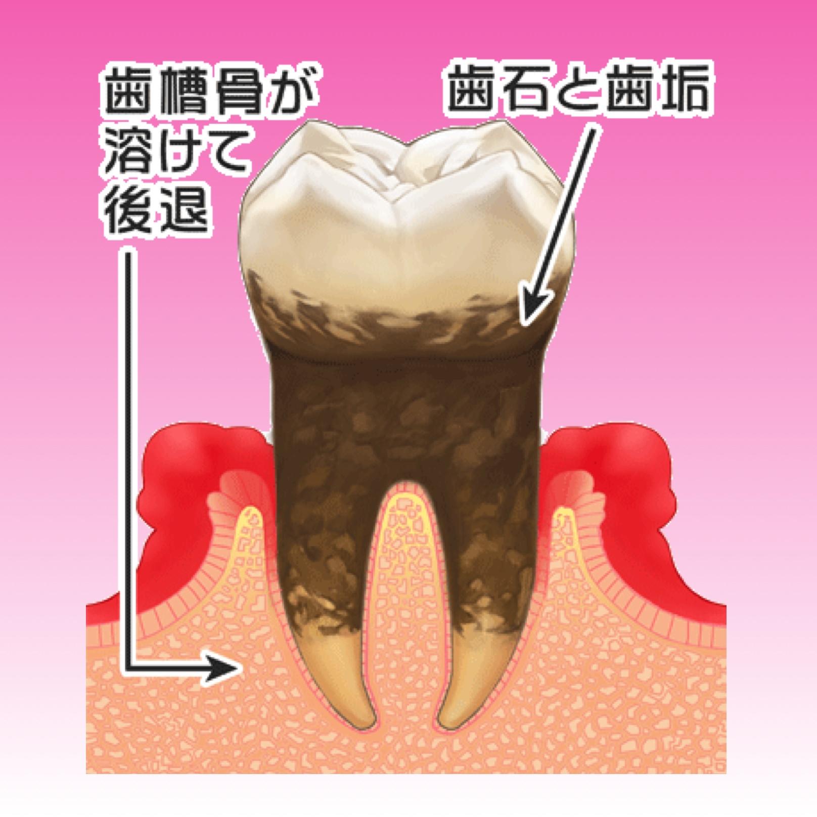 歯周病の進み方と治療について 〜中等度歯周炎〜