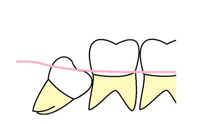 親知らずの抜歯についての良くある質問