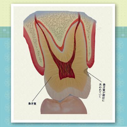 歯の傷みに要注意 〜歯が欠けた!〜