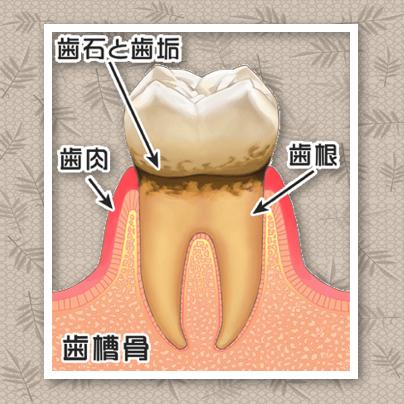 歯周病の進行度は?