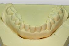 DENマウスピース歯科矯正症例紹介 名古屋取り扱い歯科医院